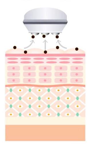 毛穴・皮溝レベルの洗浄を行う『エレクトロクレンジング』の仕組み