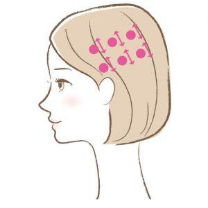 セルキュア4Tプラス「頭皮セルキュア」使い方3