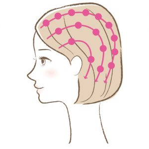 セルキュア4Tプラス「頭皮ディーポレーション」使い方2