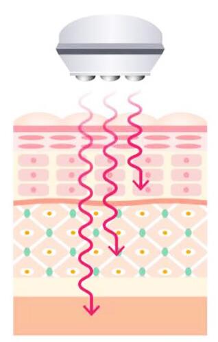表皮・真皮・皮下組織の細胞活性を促す『マイクロカレント』の仕組み