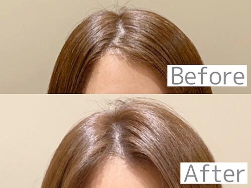 髪のボリュームのビフォーアフター